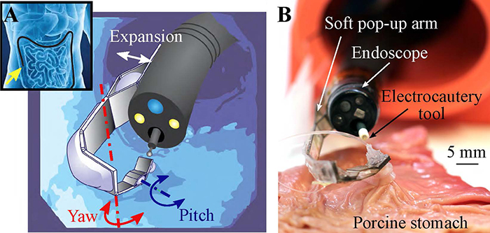 Multi-articulated soft pop-up robotic arm. Concept of the system (left): An endoscope navigating in the GI tract and detail of the arm mounted at the tip of the endoscope. Soft pop-up arm (right) performing tissue counter-traction during an ex-vivo test on a porcine stomach (Image courtesy of Harvard University)