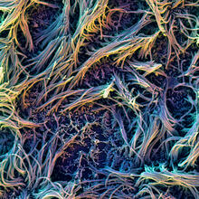 This scanning electron microscope image shows the air-exposed surface of the differentiated pulmonary epithelium with its beating, mucus-transporting cilial processes.