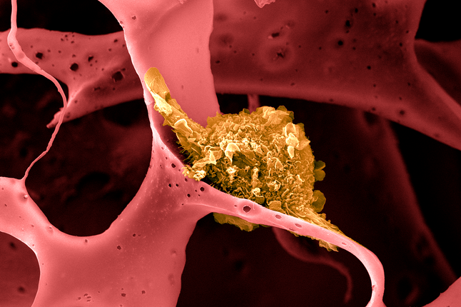 an image of a dendritic cell